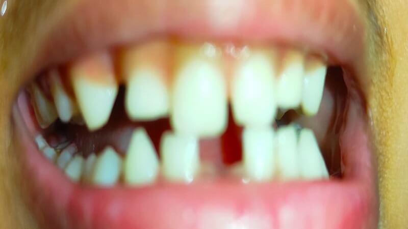 teeth lose