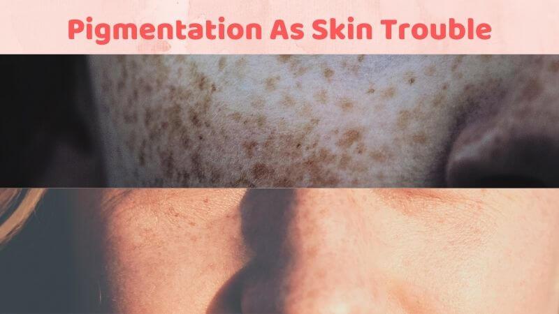 Pigmentation As skin problems
