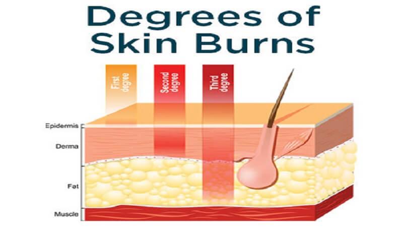 Degrees of skin burns