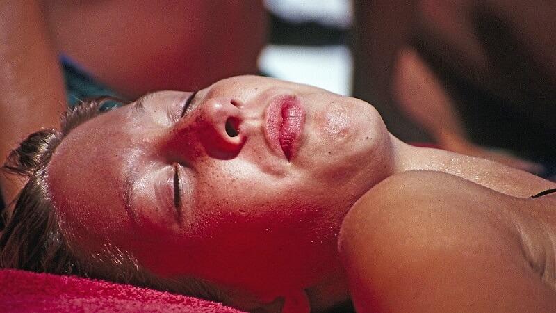 Sunburn on face